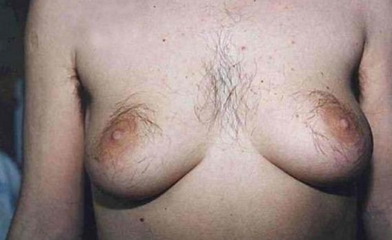 Фото волосатая женская грудь 34560 фотография